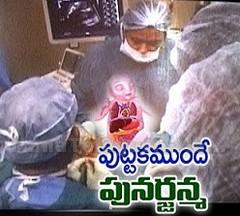 Care Hospital's Rare Operation