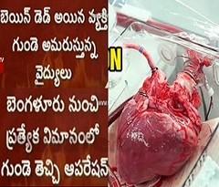 Heart Transplantation in Yashoda Hospital