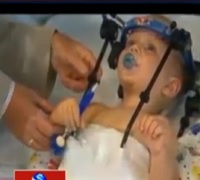 Hats off to Australian Doctors | Toddler's Head Reattached to Neck after Car Accident