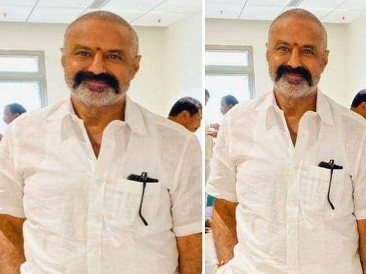 Buzz: Balayya's Hair Transplant Didn't Work Out?